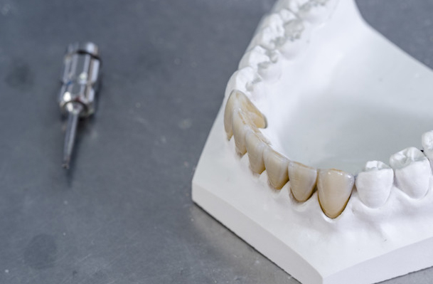 What Are Zirconia Crowns